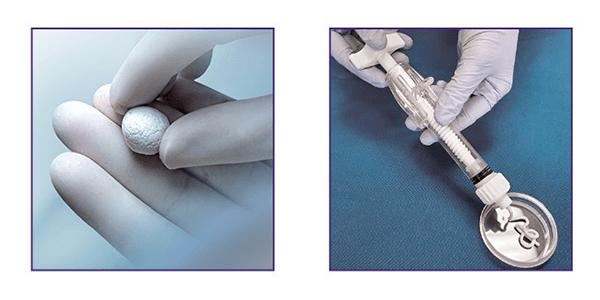 Paragon 28 Launches MgNum Bone Void Filler