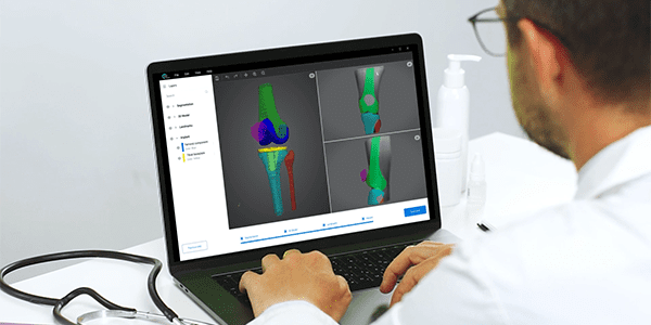 RSIP Vision Announces New Module for Orthopedic Surgery