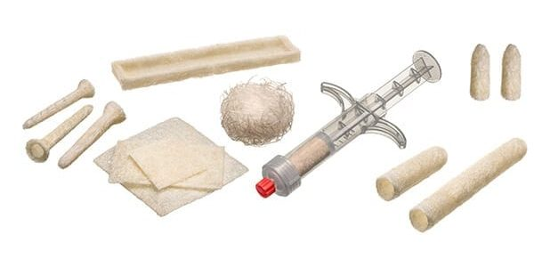 TheraCell Hits Milestone Delivery of Over 25,000 of its Licensed Bone Fiber Grafts