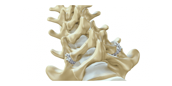 ZygoFix Obtains CE Mark for zLOCK Spinal Fusion