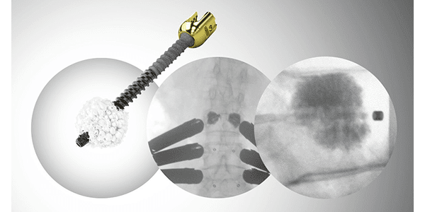 icotec Partners with G-21 on VADER Pedicle Screw