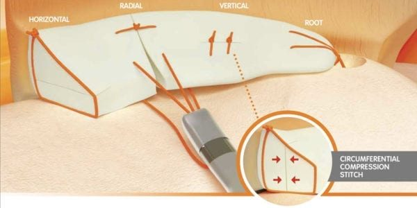 Smith & Nephew NOVOSTITCH Meniscal Repair Study Update