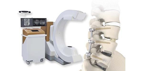 SIGNUS Partners with eCential Robotics for Spine Surgery