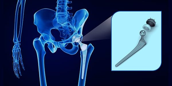 Zimmer Biomet Partners on Asia Pacific Distribution of Titanium Hips