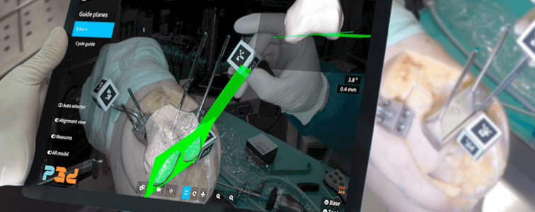 PERCEIVE3D Update on Computer-Aided Surgery Solutions