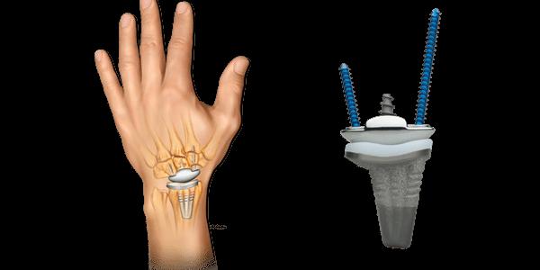 Anika Launches WristMotion Total Wrist Arthroplasty