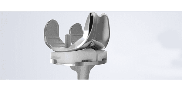 Study: Conformis iTotal Knee More Cost-Effective than Off the Shelf Implants