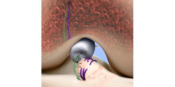 Miach Orthopaedics Initiates Postmarket Study for BEAR Implant