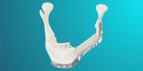 MedCAD Launches AccuPlate Patient-Specific Plates
