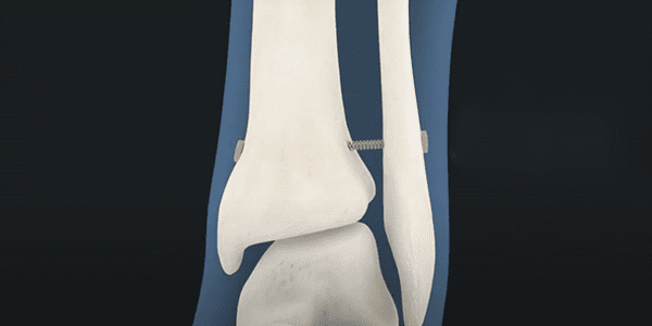 First Case with Panther Orthopedics' PUMA System in Lapidus Surgeries