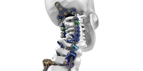Full Commercial Launch of SeaSpine NorthStar OCT Posterior Cervical Fixation