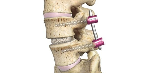 Spineology Gains De Novo Grant for OptiMesh Expandable Interbody Fusion