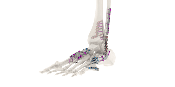 Tyber Medical Granted FDA 510(k) Clearance for Anatomical Plating