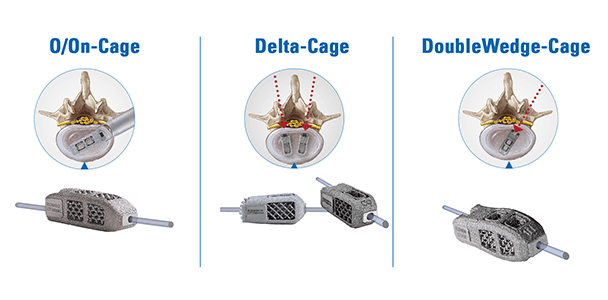 joimax Gains FDA Clearance to Market EndoLIF Delta-Cage and DoubleWedge-Cage