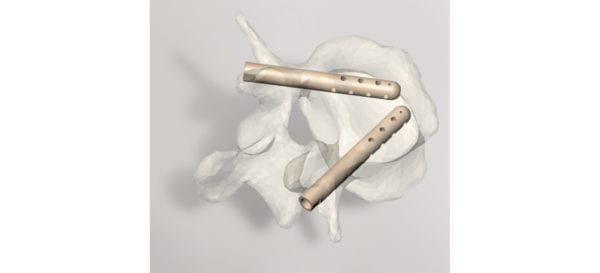 Hyprevention Receives FDA Clearance for V-STRUT Vertebral Implant