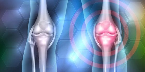 FDA Clinical Hold Removed for Histogen Trial in Knee Regeneration