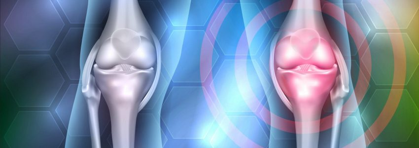 Histogen Initiates Knee Cartilage Regeneration Trial