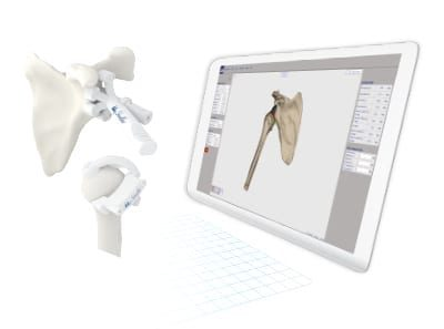 Medacta Gains FDA Clearance for MyShoulder Placement Guides