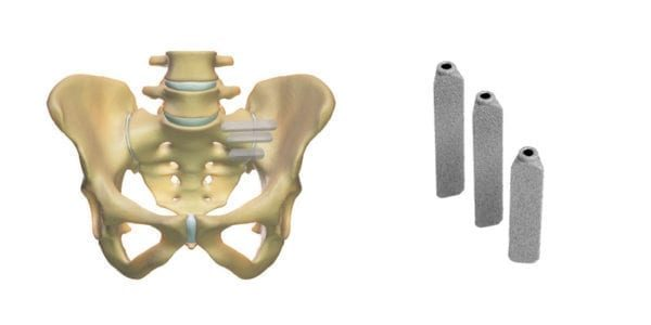 SI-BONE Gains Expanded Coverage for iFuse SI Joint Fusion
