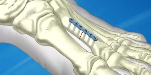 TriMed Launches ASET Foot Plating