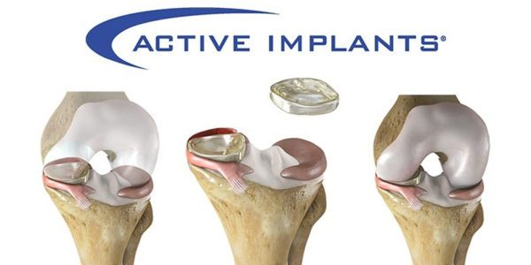 Active Implants' NUsurface Artificial Meniscus Available in Israel